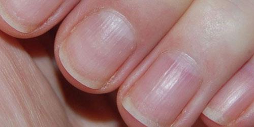 Волнистые ногти на больших пальцах 24