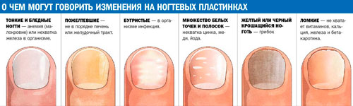 Волнистые ногти на больших пальцах 26